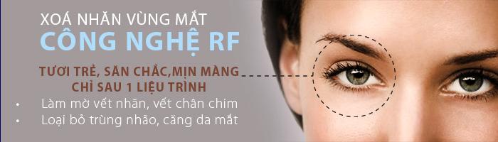 xóa nhăn vùng mắt hiệu quả
