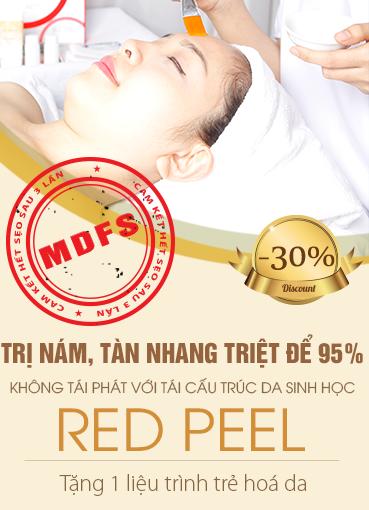 Giảm 30% dịch vụ trị nám tàn nhang bằng Red Peel
