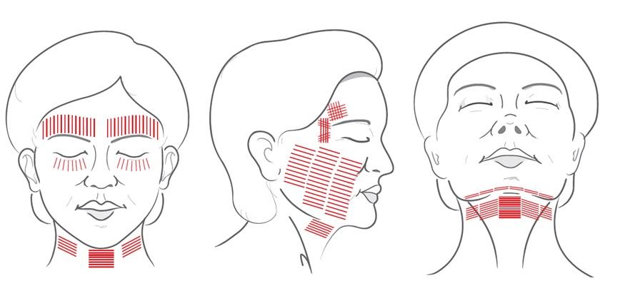 Các vùng trị liệu hifu