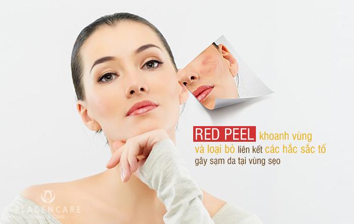 Trị sẹo thâm công nghệ Red Peel