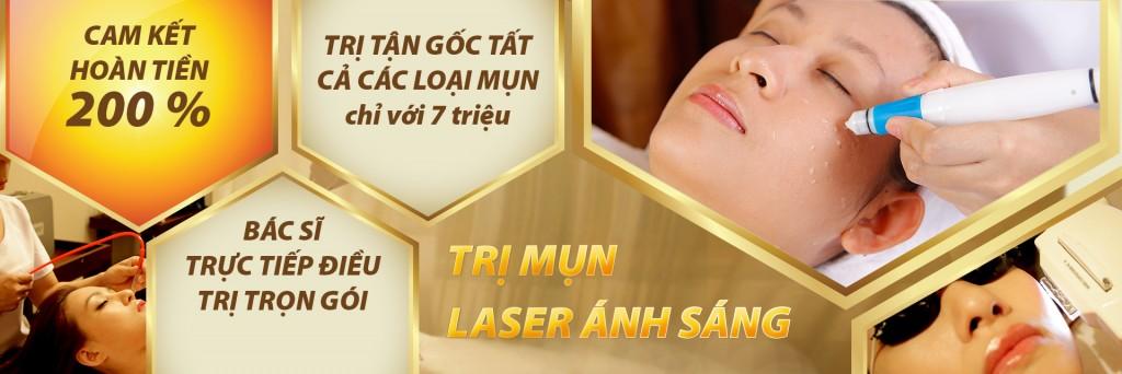 Trị mụn công nghệ laser ánh sáng