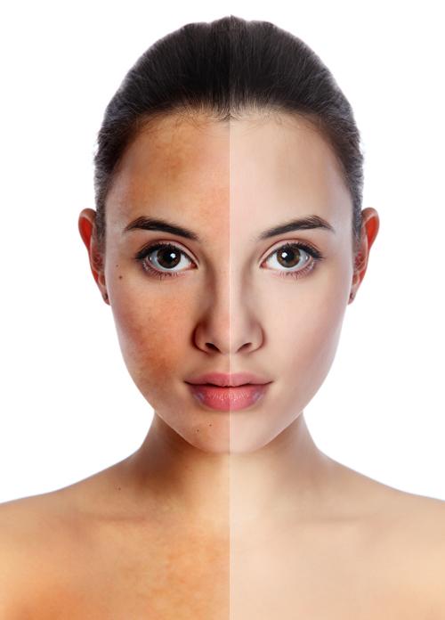 90% phụ nữ tuổi 35+ gặp vấn đề với nám da – Làm sao đây?
