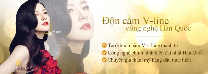 Don cam vline CN HQuoc - web