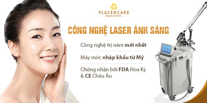 Tri-nam-bang-laser-anh-sang-1