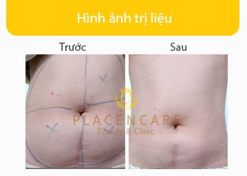 anh-truoc-sau-giam-beo-thong-kinh-lac-2