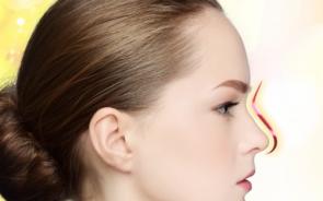 Nâng mũi S-line có ảnh hưởng gì không? Bao lâu thì ổn định