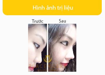 anh-khach-hang-nang-mui-tham-my-han-quoc