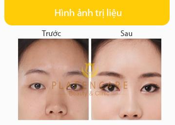 anh-truoc-sau-nang-mui-boc-sun-1