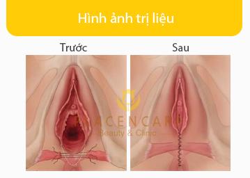 phau-thuat-tham-my-tang-sinh-mon-1