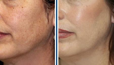 Ánh sáng laser có thực sự là cách trị nám da mặt hiệu quả