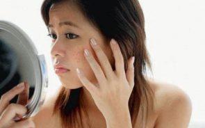 Cách trị nám da mặt hiệu quả nhất tại TMV Placencare