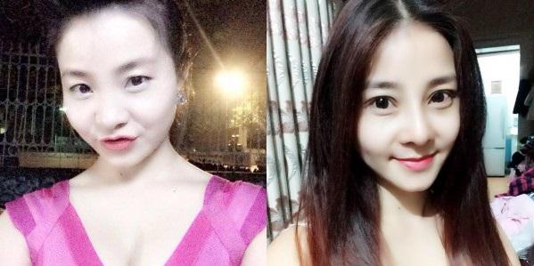 ket-qua-nang-mui-kangnams-perfect-sline-duy-tri-duoc-trong-bao-lau111