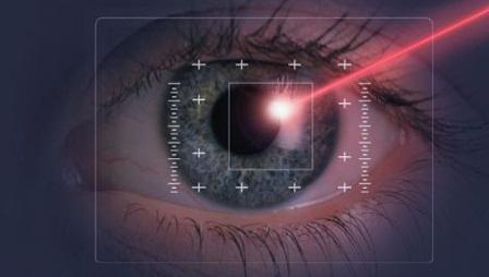 tri-nam-bang-laser