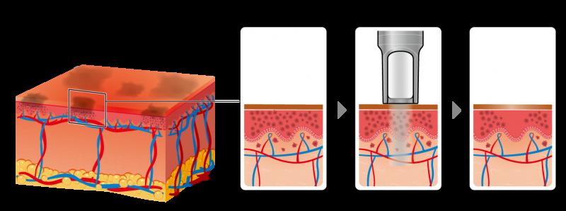 tri-nam-bang-laser1
