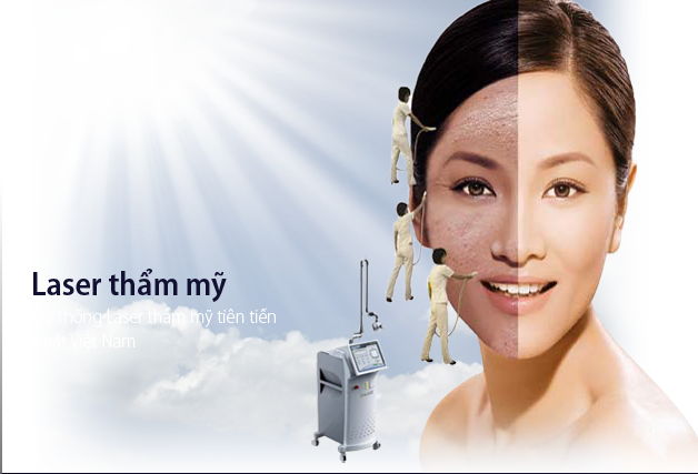 tri-nam-bang-laser2
