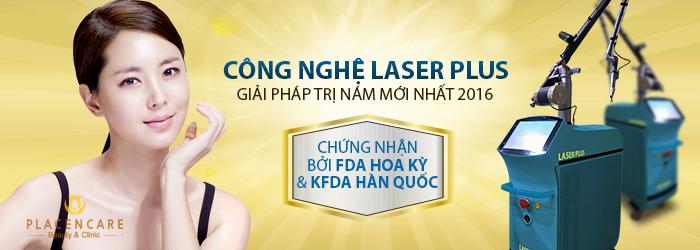 công nghệ Laser plus thế hệ mới 1