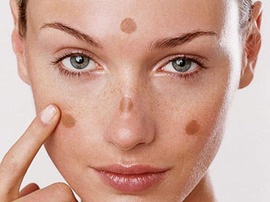 Nám da và các phương pháp điều trị nám