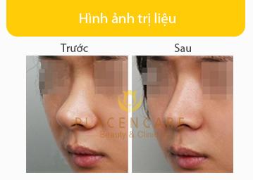 nang-mui-sline-han-quoc-3