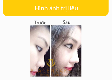nang-mui-s-line-han-quoc-4