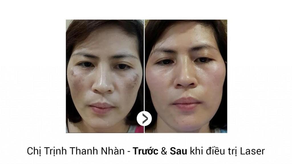 video-tri-nam-2