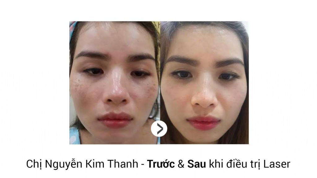 video-tri-nam-3