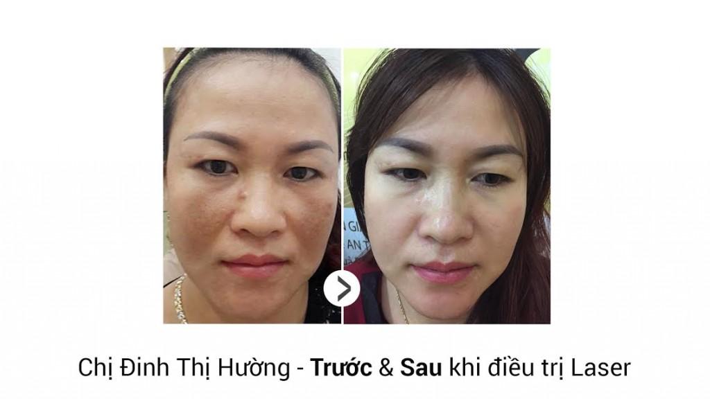 video-tri-nam-5