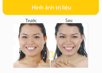 T-S-Tiem-botox-thon-gon-vung-ham
