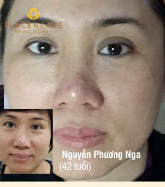 Trẻ hóa da vùng mắt EPlus