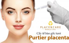Cấy tế bào gốc tươi Purtier placenta – công nghệ đảo ngược lão hóa
