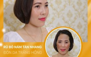 Thẩm mỹ viện trị nám tốt nhất tại Bắc Ninh?