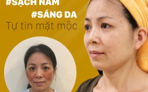 Những địa chỉ trị nám tàn nhang tại Bắc Ninh hiệu quả & giá tốt nhất hiện nay